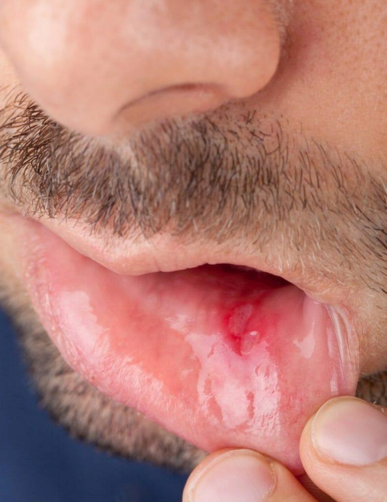 אפטות (פצעים בחלל הפה)